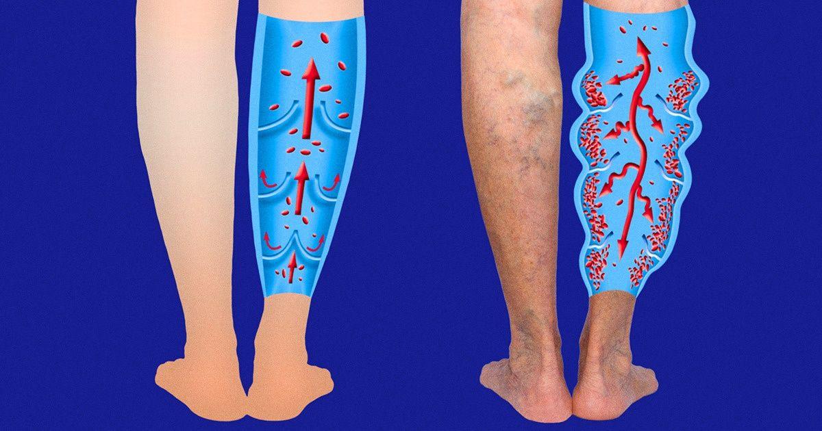 7 Latihan untuk Mengurangi Pembuluh Darah Laba-Laba dan Varises